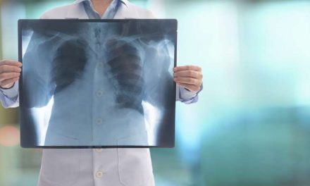 Neumonía, cuando la tos es más que un resfriado
