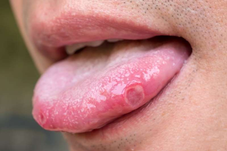 """""""Lengua Covid"""": nuevos y preocupantes síntomas"""